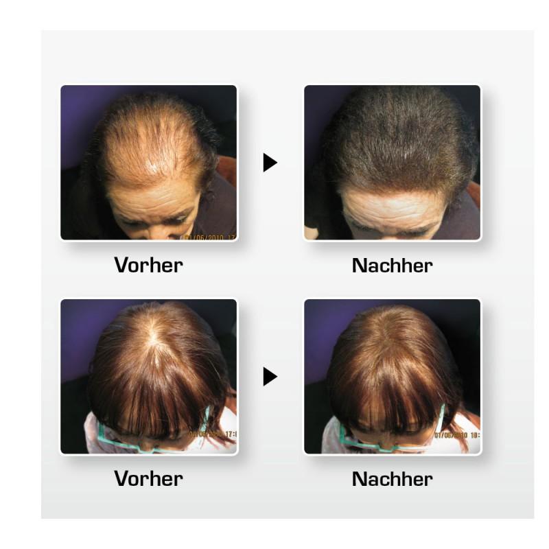 Biothik Haaraufbau-Faser S9 rotbraun 15 g