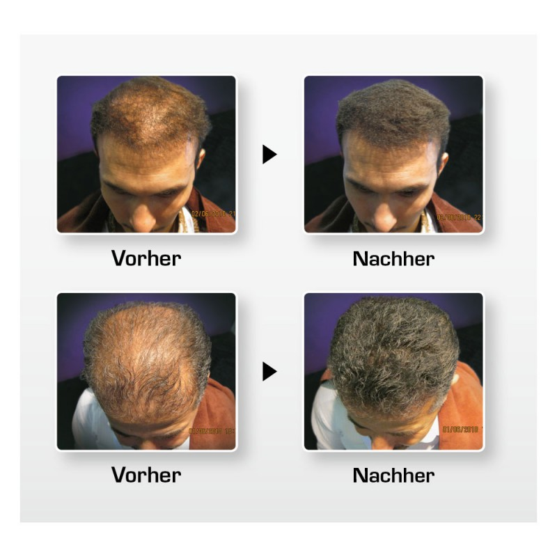 Biothik Haaraufbau-Faser S10 grau 15 g